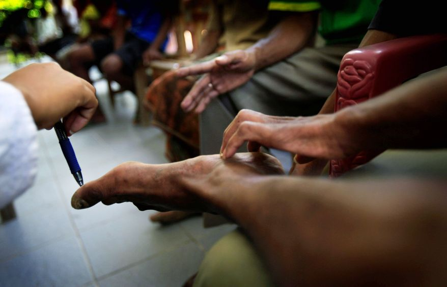 In Oe-sillo, East Timor, a health official from the Leprosy Mission tests a patient's sense of touch on his feet. (Associated Press)