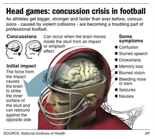 Graphic describes what happens to the brain of a football player to cause a concussion