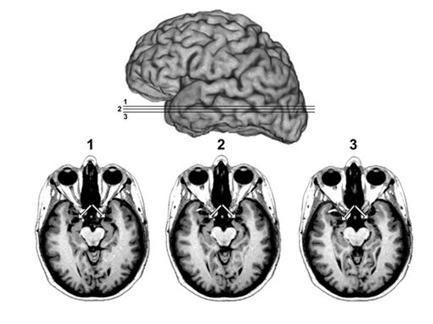 An undated image of a brain scan provided by the University of Iowa Department of Neurology, shows MRI scans of patient SM's brain.  The arrows point to the amygdala, the region of the brain which SM is missing, as shown by the vacant black holes underneath the arrows.  (AP Photo/University of Iowa Department of Neurology)
