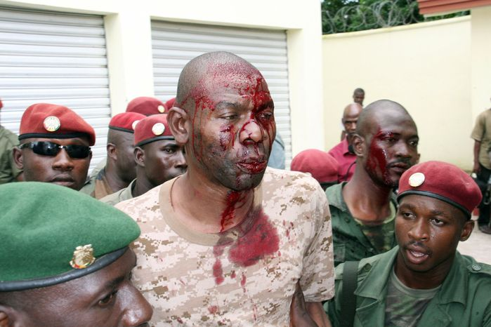 """A bloodied """"De Gaulle,"""" a bodyguard close to Guinea's last two military leaders, is detained by presidential guards after shooting broke out near the president's home for a second time Tuesday. (Associated Press)"""