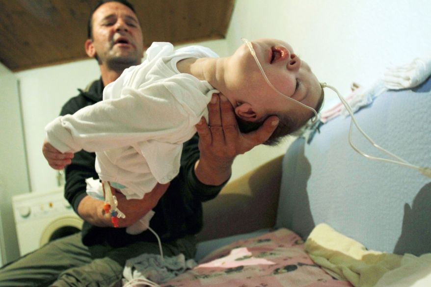 Unemployed father Edin Hajdarevic holds Ajsa, a 20-month-old baby born with multiple brain and intestine disorders, at their home near Visoko, Bosnia. (Associated Press)