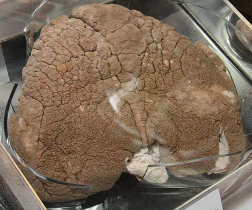 """Elephantiasis scrotum from the exhibit """"Visibly Human: Health and Disease in the Human Body"""" at the National Museum of Health and Medicine. (National Museum of Health and Medicine)"""