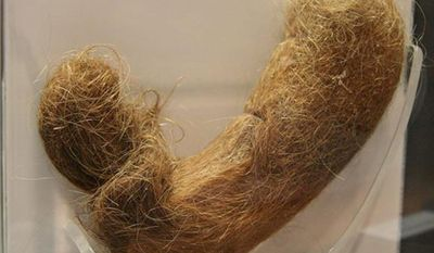 """A human hairball from the exhibit """"Visibly Human: Health and Disease in the Human Body"""" at National Museum of Health and Medicine. (National Museum of Health and Medicine)"""