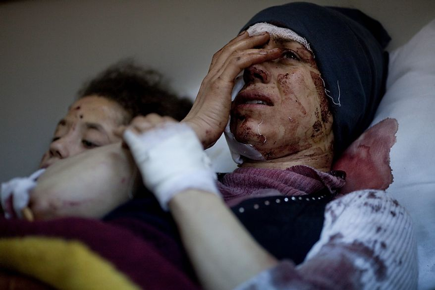 In this photo from March 10, 2012, Aida, 32, reacts as she recovers from severe injuries after the Syrian Army shelled her house in Idlib north Syria. Aida's husband and two children were killed. (Associated Press)
