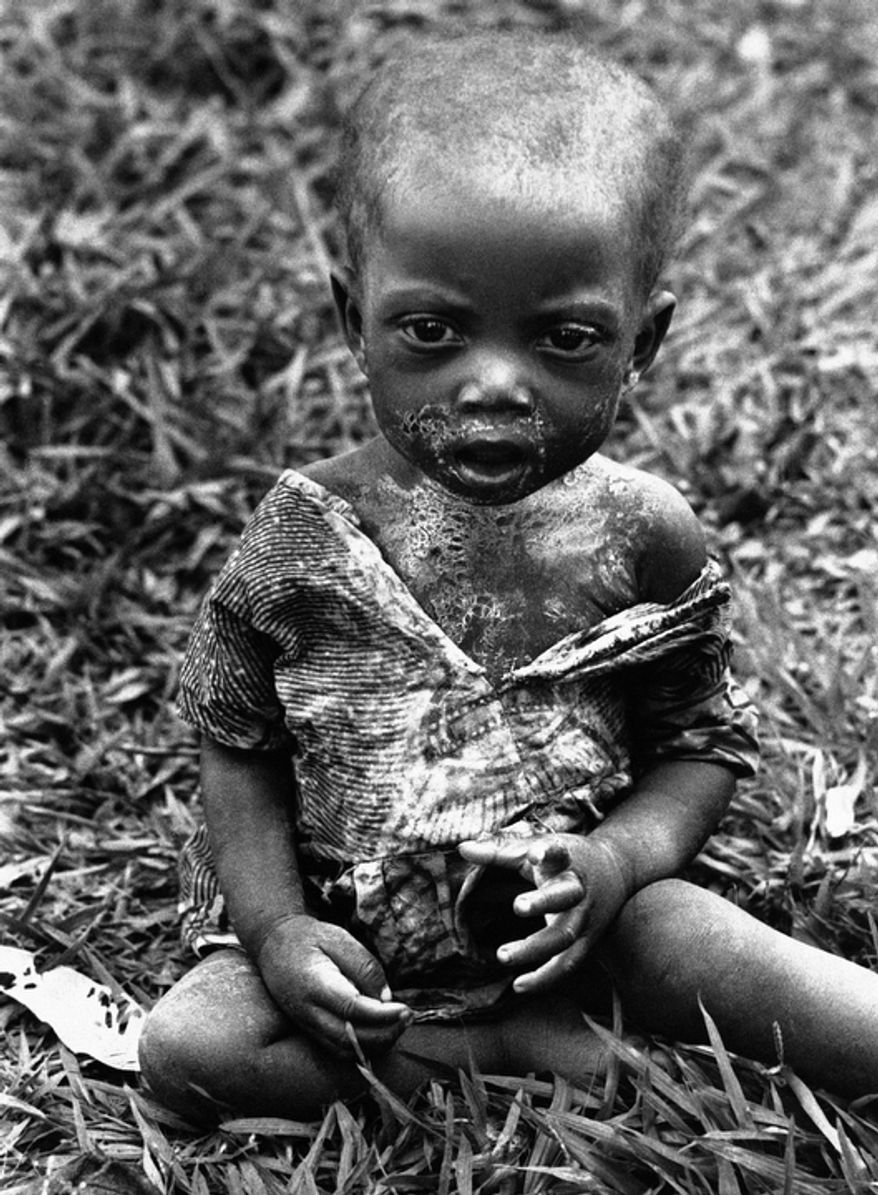 In this Jan. 26, 1961 file photo shot by Associated Press photographer Horst Faas, a sick and hungry Baluba child is photographed at the Miabi Hospital in South Kasai, Congo.  (AP Photo/Horst Faas, File)