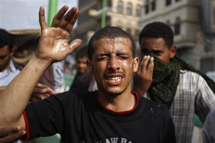 A protestor reacts from tear gas fired by riot police, unseen, near the U.S. Embassy during a protest about a film ridiculing Islam's Prophet Muhammad, in Sanaa, Yemen, Thursday, Sept. 13, 2012. (AP Photo/Hani Mohammed)