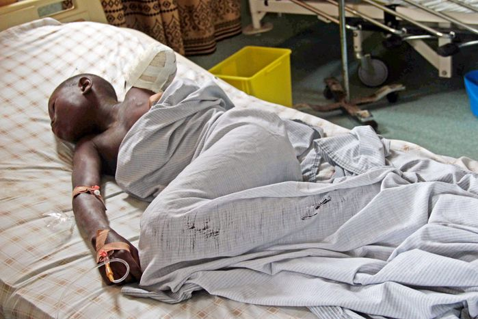 A 12-year-old boy rests in a bed at the Heal Africa hospital after his arm was amputated following a shrapnel wound during heavy fighting between the Congolese army and M23 rebels in Goma, Congo, on Tuesday. (Associated Press)