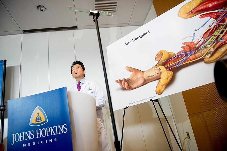 Surgical team leader Dr. W.P. Andrew Lee speaks at a press conference to announce the Johns Hopkins Hospital's first successful bilateral arm transplant performed on Iraq war veteran Brendan Marrocco, Baltimore, Md., Tuesday, January 29, 2013. Marrocco, who lost all four limbs from a bomb outside Baghdad, Iraq., is expected to slowly develop control over his new arms over the next year and a half. (Andrew Harnik/The Washington Times)