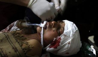A doctor treats a Pakistani boy who was injured in a suicide bombing, at a local hospital in Peshawar, Pakistan, Feb. 1, 2013. (Associated Press)