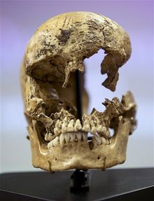 "Strike marks are seen on the skull of  ""Jane of Jamestown"" during a news conference at the National Museum of Natural History, where scientists presented the bones of the 14-year-old girl as evidence that some of the earliest American colonists at Jamestown, Va., survived harsh conditions by turning to cannibalism. (AP Photo/Carolyn Kaster)"