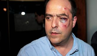 Opposition lawmaker Julio Borges arrives with a bruised face to his political party's headquarters before speaking to the press in Caracas, Venezuela, Tuesday, April 30, 2013. Members of Venezuela's National Assembly say post-election tensions set off a brawl between lawmakers that left Borges badly bruised and bleeding, after he and other opposition lawmakers tried to protest a proposal barring them from legislative activities. (AP Photo/Fernando Llano)