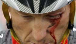 **FILE** FILE - In this May 20, 2010 file photo, Lance Armstrong bleeds from a cut under his left eye after crashing during the fifth stage of the Tour of California cycling race in the outskirts of Visalia, Calif. The dirty past of the Tour de France came back on Friday, June 28, 2013, to haunt the 100th edition of cycling's showcase race, with Lance Armstrong telling a newspaper he couldn't have won without doping. (AP Photo/Marcio Jose Sanchez, File)