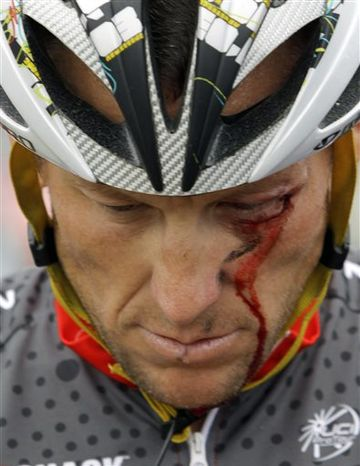 **FILE** FILE - In this May 20, 2010 file photo, Lance Armstrong bleeds from a cut under his left eye after crashing during the fifth stage of the Tour of California cycling race in the outskirts of Visalia, Calif. The dirty past of the Tour de France came back on Friday, June 28, 2013, to haunt the 100th edition of cycling's showcase race, with Lance Armstrong telling a newspaper he couldn't have won
