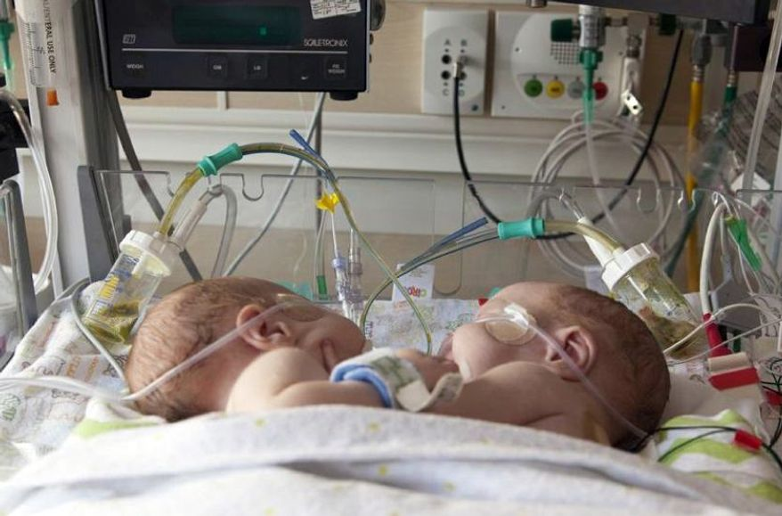 This undated photo provided by Medical City Children's Hospital in Dallas shows conjoined boys Emmett, left and Owen Ezell. Hospital officials say the conjoined boys born last month in Dallas have been safely separated and are doing well. (AP Photo/Medical City Children's Hospital)