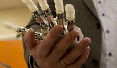 Dennis Aabo Sørensen, of Aalborg, Denmark, who lost his left hand in a fireworks accident a decade ago, shows the sensory feedback enabled prosthesis he is testing in Rome, Wednesday, Feb. 5, 2014. The patient only got to experiment with the bulky prototype for a week, and it's far from the bionics of science fiction movies. But the research released Wednesday is part of a major effort to create more lifelike, and usable, prosthetics. This isn't the first time scientists have tried to give some sense of touch to artificial hands; a few other pilot projects have been reported in the U.S. and Europe. But this newest experiment, published in the journal Science Translational Medicine, shows Sorensen not only could tell differences in the shape and hardness of objects, he also could quickly react and adjust his grasp. (AP Photo/Paolo Santalucia)