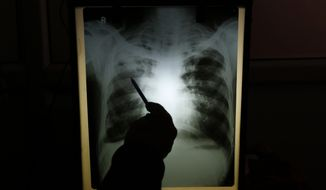 In this Monday, Feb. 3, 2014, photo, senior chest physician Dr. A.K. Upadhaya looks at X-ray results of patient Shyam Lal, suspected to have tuberculosis (TB), at Lal Bahadur Shastri Government Hospital at Ram Nagar in Varanasi, India. (AP Photo/Rajesh Kumar Singh) ** FILE **