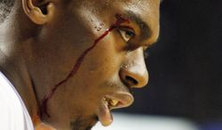 Kentucky's Dakari Johnson (44) leaves the game with a cut over his eye during the first half of an NCAA college basketball game against LSU, Saturday, Feb. 22, 2014, in Lexington, Ky. (AP Photo/James Crisp)