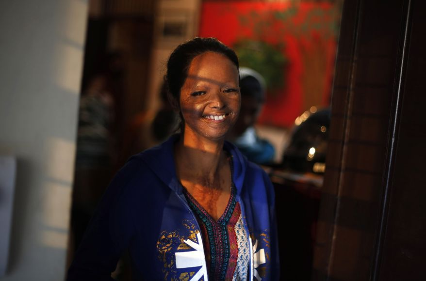 **FILE** In this Thursday, Dec. 5, 2013 photo, an acid attack victim Laxmi, 24, who is also a volunteer with the Indian NGO Stop Acid Attacks, smiles at the camera in her office in New Delhi, India. (AP Photo/Altaf Qadri)