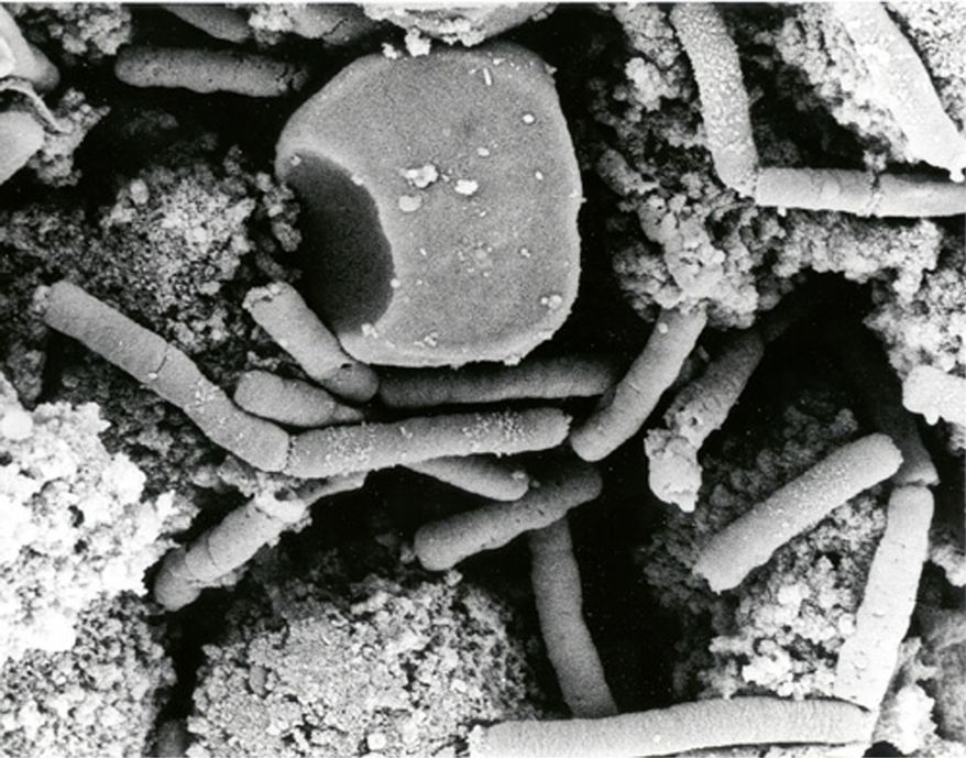 ** FILE ** This undated file electronmicrograph from the official U.S. Department of Defense anthrax information website shows Bacillus anthracis vegetative cells in a monkey spleen. Anthrax is an infectious disease caused by the spore-forming bacteria Bacillus anthracis. (AP Photo/Anthrax Vaccine Immunization Program, File)