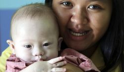 In this photo taken Aug. 3, 2014, Thai surrogate mother Pattaramon Chanbua, a 21-year-old food vendor, poses with Gammy, a 9-month old baby boy who was born with a Down syndrome at a hospital in Sri Racha, Chonburi province, southeastern Thailand. The case of an Australian couple accused of abandoning their son with his Thai surrogate mother after discovering the child had Down syndrome, and taking home his healthy twin, has cast unfavorable light on the largely unregulated business of commercial surrogacy. (AP Photo/Apichart Weerawong)