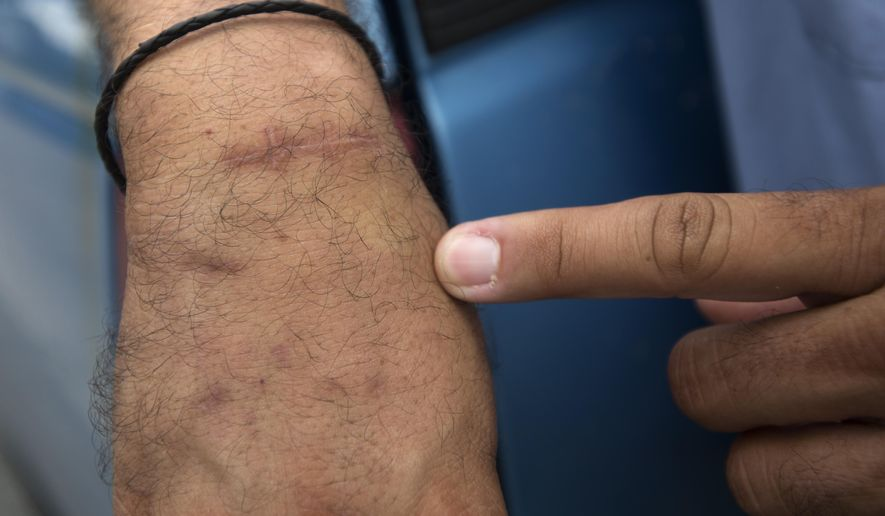 In this photo taken on Aug. 20, 2014, Dave Delgado, a city of Saginaw water meter reader, points to a scar on his wrist in Saginaw, Mich.  He received the scar after three dogs attacked him last year while he was reading meters. Delgado's latest canine run-in came Aug. 15 when a pit bull mixed-breed charged him. In the 19 years he has been with the city,  he has been bitten three times while out reading meters.  (AP Photo/The Saginaw News, Jeff Schrier) ALL LOCAL TELEVISION OUT; LOCAL TELEVISION INTERNET OUT