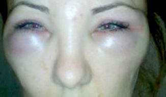 Romanian Racula Crisan sued her doctor after he injected snake venom into her face instead of Botox. (Image: CEN screenshot)