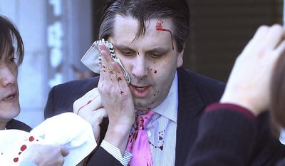 [u'U.S. Ambassador to South Korea Mark Lippert eaves a lecture hall for a hospital in Seoul, South Korea, Thursday, March 5, 2015 after being attacked by a man. Lippert was attacked by a man wielding a razor and screaming that the rival Koreas should be unified, South Korean police and media said Thursday. (AP Photo/Yonhap, Kim Ju-Sung) KOREA OUT', u'U.S. Ambassador to South Korea Mark Lippert leaves a lecture hall for a hospital in Seoul, South Korea, Thursday, March 5, 2015 after being attacked by a man. Lippert was slashed on the face and wrist by a man wielding a knife with a 10-inch blade and screaming that the rival Koreas should be unified, South Korean police said Thursday. (AP Photo/Yonhap, Kim Ju-Sung) KOREA OUT']
