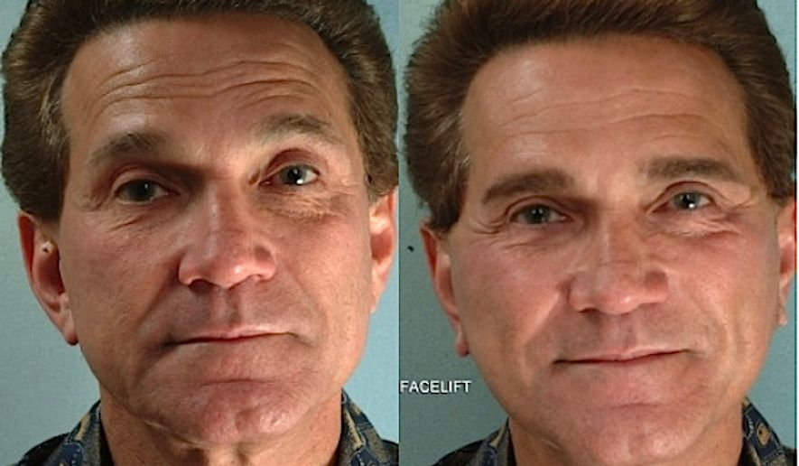 Plastic Surgery For Men Up By 43 Percent As They Compete