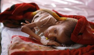 In this Sunday, Jan. 24, 2016, photo, a malnourished child lies in a bed waiting to receive treatment at a therapeutic feeding center in a hospital in Sanaa, Yemen. This child is one of millions of people across countries like Syria, Yemen and Iraq are gripped by hunger, struggling to survive with little help from the outside world. (AP Photo/Hani Mohammed)