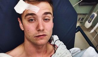 YouTube star Calum McSwiggan's account of brutally beaten by a group of men outside a gay club in West Hollywood has been called into question by police. (Instagram/Calum McSwiggan)