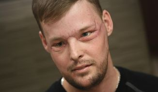 """In this Jan. 24, 2017, photo, face transplant recipient Andy Sandness attends a speech therapy appointment at Mayo Clinic in Rochester, Minn. He wasn't allowed to see himself immediately after the surgery. His room mirror and cell phone were removed. When he finally did see his face after three weeks, he was overwhelmed. """"Once you lose something that you've had forever, you know what it's like not to have it. ... And once you get a second chance to have it back, you never forget it."""" Just having a nose and mouth are blessings, Sandness says. """"The looks are a bonus."""" (AP Photo/Charlie Neibergall)"""