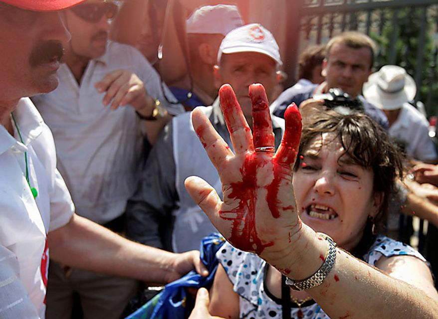 A Romanian woman holds up her bloodied hand after being injured in scuffles with riot police outside the parliament building, during protests in Bucharest Tuesday, June 15, 2010. Thousands of angry Romanians protested Tuesday outside parliament against salary and pension cuts as the legislature started debating a no-confidence motion in the government. (AP Photo/Vadim Ghirda)
