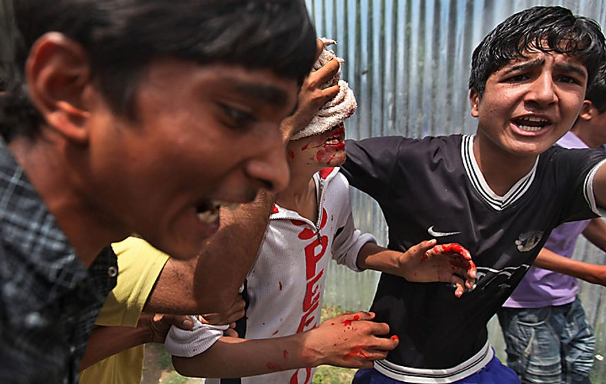 A Kashmiri boy who bleeds after being beaten by Indian security forces is taken away during a protest in Srinagar, India, Monday, Aug. 16, 2010. Thousands of armed police and paramilitary soldiers patrolled nearly deserted streets in Srinagar and other major towns and enforced a strict curfew in most of the Kashmir region Monday. (AP Photo/Dar Yasin)