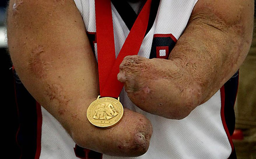 USA's Nick Springer, of New York, holds his gold medal after defeating Australia to win the World Wheelchair Rugby Championships in Richmond, British Columbia, Canada, on Sunday Sept. 26, 2010.(AP Photo/The Canadian Press, Darryl Dyck)