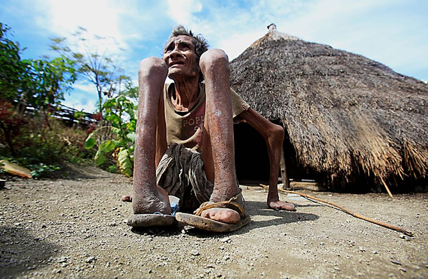 In this photo taken on Thursday July 8, 2010, former leprosy patient Adelino Quelo, 68, crouches outside his hut in Malelat, West Oe-cusse, overlooking the East Nusa Tengara province of Indonesia. His fingers, toes and parts of his hands and feet are missing. Only stubby knobs remain, keeping him from standing, gripping and bathing himself. East Timor is one of just two places worldwide where leprosy is still widespread, and the country has now declared war on the age-old scourge. (AP Photo/Wong Maye-E)