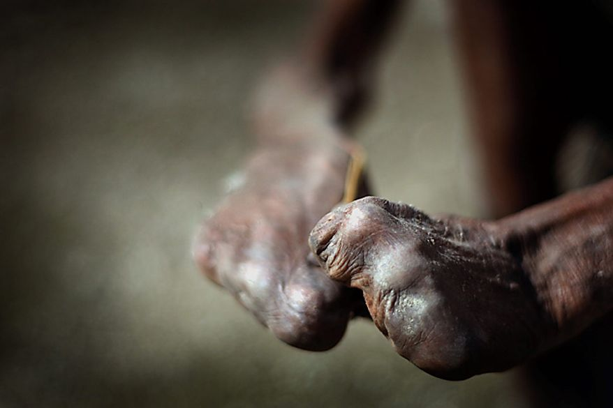In this photo taken on Thursday, July 8, 2010, the hands of former leprosy patient Adelino Quelo, 68, are seen as he crouches outside his hut in Malelat, West Oe-cusse, overlooking the East Nusa Tengara province of Indonesia. His fingers, toes and parts of his hands and feet are missing. Only stubby knobs remain, keeping him from standing, gripping and bathing himself. East Timor is one of just two places worldwide where leprosy is still widespread, and the country has now declared war on the age-old scourge. (AP Photo/Wong Maye-E)
