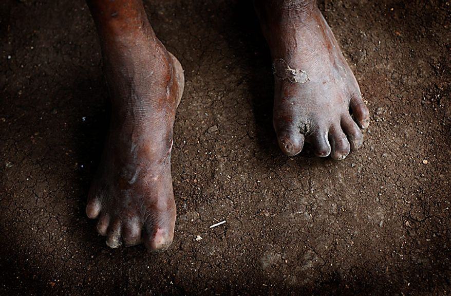 This photo taken on Wednesday July 7, 2010 shows the feet of Luis Siqueira Aforn, 65, who's toes were chewed by rats while he was sleeping on the ground in Hauana, East Timor, south of Oe-cusse town. The loss of sensation led him to be oblivious to the nibbling of the rodents. East Timor is one of just two places worldwide where leprosy is still widespread, and the country has now declared war on the age-old scourge. (AP Photo/Wong Maye-E)