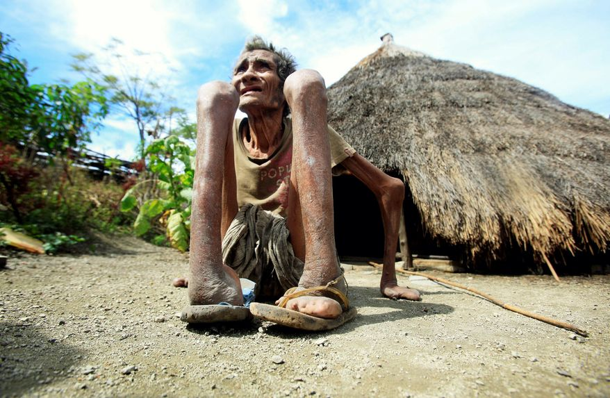 Former leprosy patient Adelino Quelo, 68, crouches outside his hut in Malelat, West Oe-cusse, overlooking the East Nusa Tengara province of Indonesia. (Associated Press)