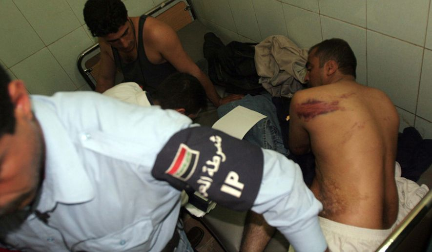 ** FILE ** In this Nov. 14, 2005, photo, Iraqi policemen show their bruises, allegedly caused by torture, as they are treated at Yarmouk hospital in Baghdad. The WikiLeaks website released nearly 400,000 documents on Friday, Oct. 22, 2010, that claim Iraqi forces mistreated, tortured and killed their captives as they battled a ruthless insurgency. (AP Photo/Khalid Mohammed)