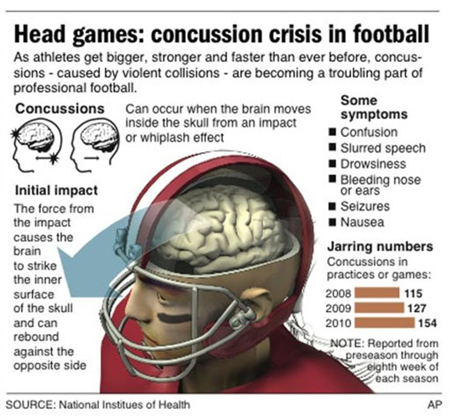 ADDS chart; graphic describes what happens to the brain of a football player to possibly cause a concussion