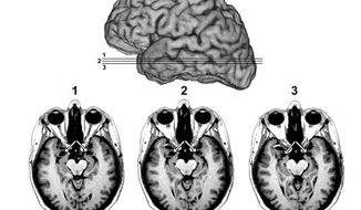 An undated image of a MRI brain scan (AP Photo/University of Iowa Department of Neurology)