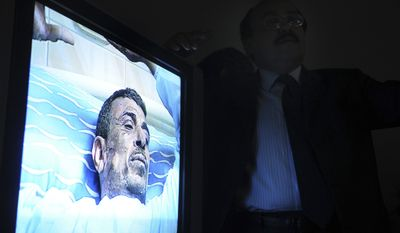 A television monitor displays video of 48-year old Abdou Abdel-Monaam Hamadah at a Cairo hospital on Monday, Jan. 17, 2011, as an unidentified plastic surgeon (right) talks about the medical case. Hamadah apparently set himself on fire Monday outside the country's parliament in a personal protest, but the self-immolation was thwarted when security officials and passing motorists used fire extinguishers to quickly put out the blaze engulfing the man. (AP Photo)