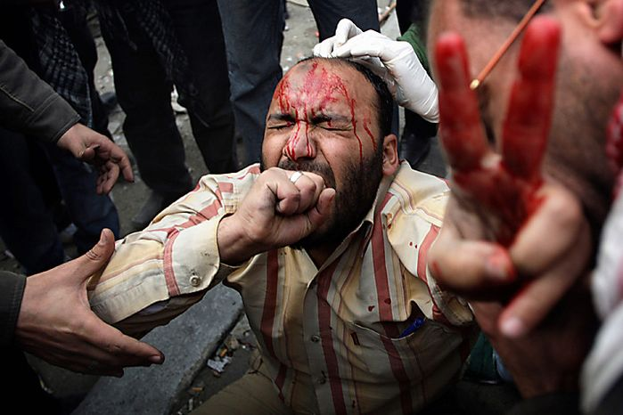 A wounded anti-government protester is tended during clashes in Cairo, Egypt, Thursday, Feb. 3, 2011. (AP Photo/Sebastian Scheiner)