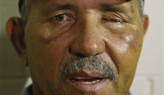 Atlanta Braves minor league manager Luis Salazar, who was hit in the face by a line drive last week and had his left eye removed, appears before a spring training baseball game between the Braves and the Florida Marlins on Wednesday, March 23, 2011, in Kissimmee, Fla. (AP Photo/David Goldman)