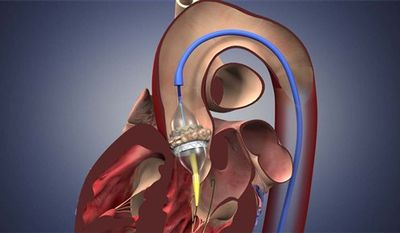 This image provided by Edwards Lifesciences shows a graphic of the Edwards SAPIEN valve. A long-awaited study suggests that many people with bad aortic valves can have them replaced through a tube into an artery instead of open-heart surgery. Edwards Lifesciences Corp. is seeking federal approval for its experimental SAPIEN aortic valve, implanted through an artery. (AP Photo/Edwards Lifesciences) NO SALES