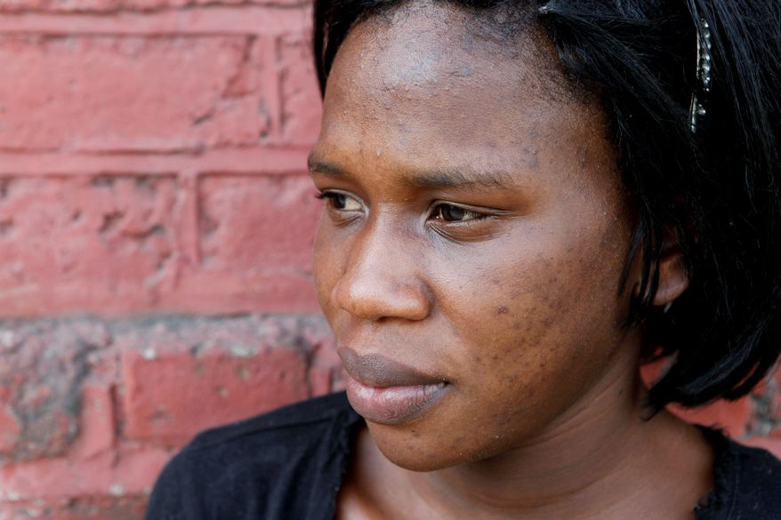 Mikeisha Simpson, 23, says she hopes to transform her dark complexion to a cafe-au-lait-color common among Jamaica's elite and favored by many men. She thinks having fairer skin could give her an opportunity for a better life. (Associated Press)