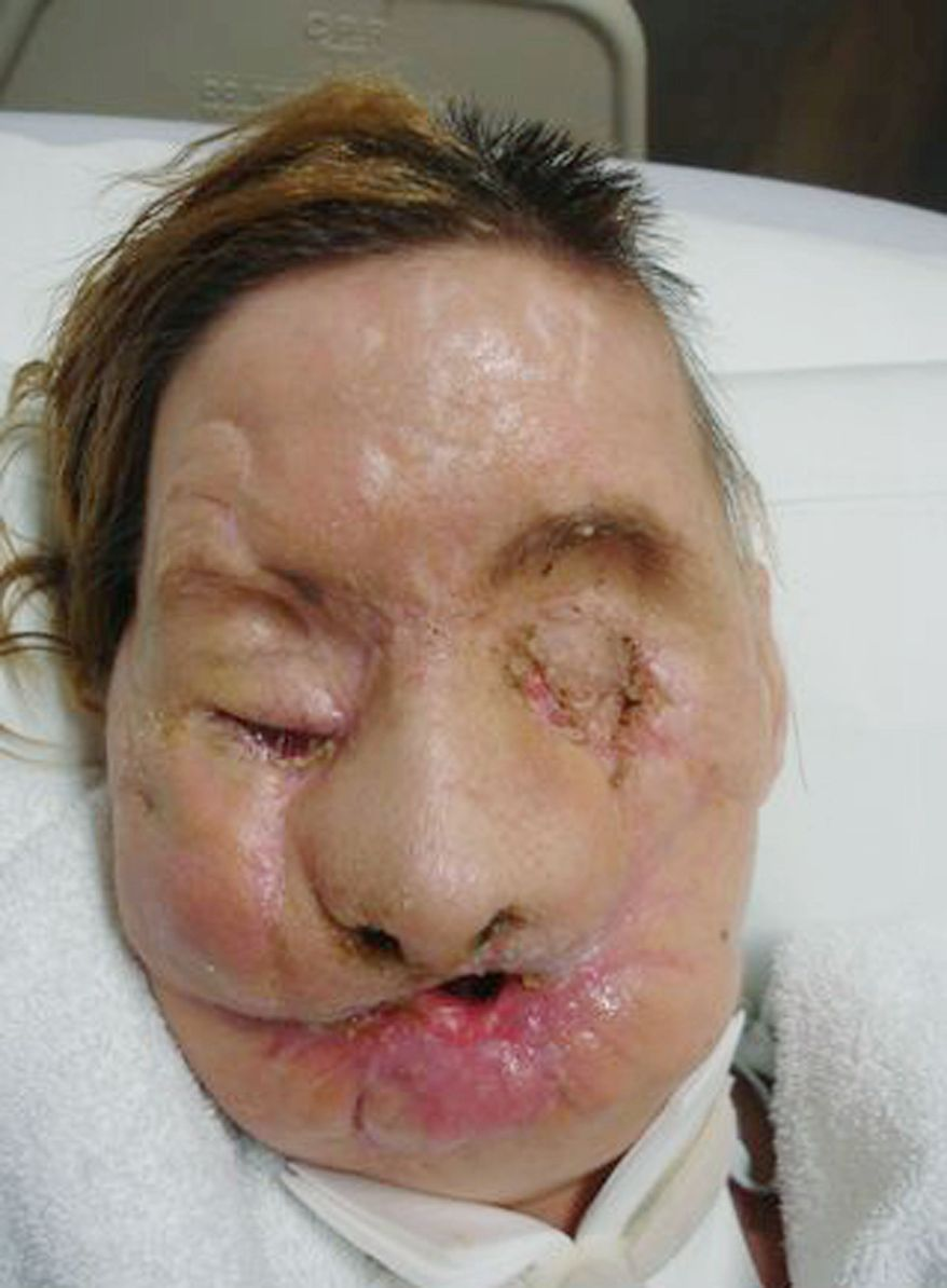 "brigham and women's hospital via associated press Charla Nash of Stamford, Conn., who was mauled two years ago by a neighbor's pet chimpanzee, is recovering in a nursing home from a face transplant performed in May at Brigham and Women's Hospital in Boston. Before and after photos above show the extent of her injuries and how she looks now. An undated family photo below shows Ms. Nash before the chimpanzee's attack. ""I will now be able to do things I once took for granted,"" she said in the statement."