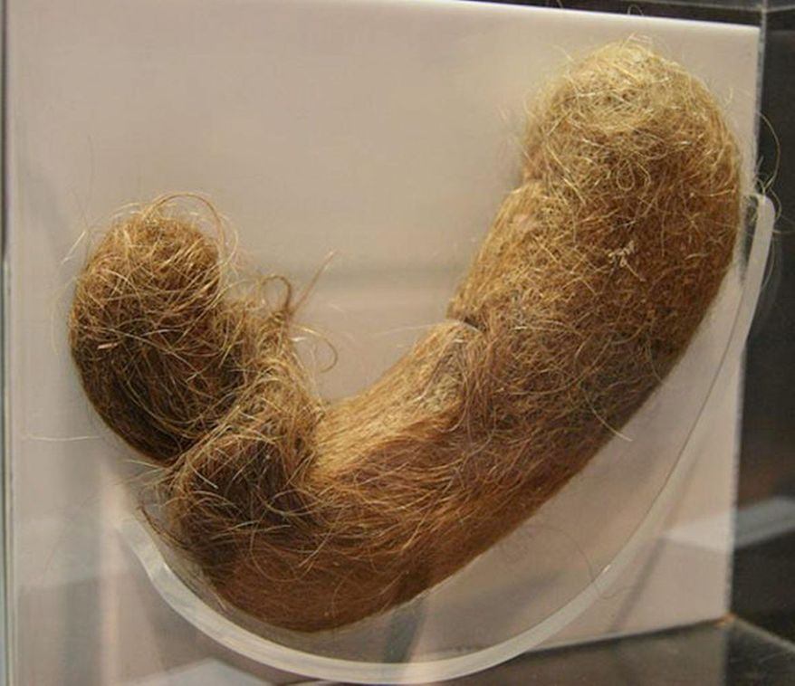 "A human hairball from the exhibit ""Visibly Human: Health and Disease in the Human Body"" at National Museum of Health and Medicine. (National Museum of Health and Medicine)"