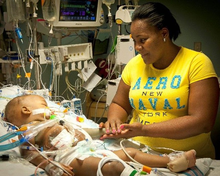 Lisandra Sanatis looks at her daughter, Maria, after surgery at Children's Hospital of Richmond at Virginia Commonwealth University. Maria was no longer joined with her sister. The twins were successfully separated. Maria and Teresa Tapia were born joined at the lower chest and abdomen, sharing a liver, pancreas and portion of the small intestine. (Associated Press)