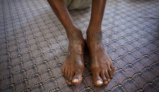 **FILE** A man suspected of being a Gadhafi loyalist shows wounds on his feet Sept. 22, 2011, at a detention facility in Misrata, Libya. (Associated Press)